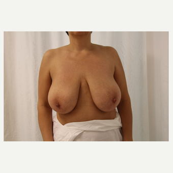 45-54 year old woman treated with Breast Reduction before 3179629