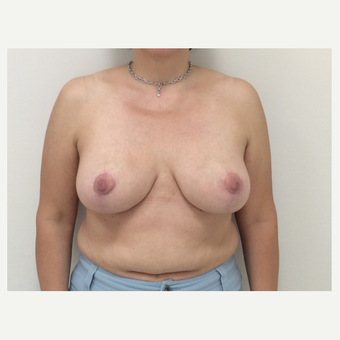 45-54 year old woman treated with Breast Reduction after 3179629