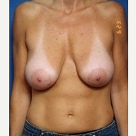 35-44 year old woman treated with Breast Lift before 3576533