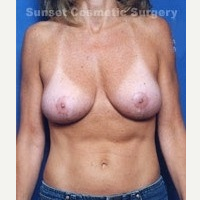 35-44 year old woman treated with Breast Lift after 3576533