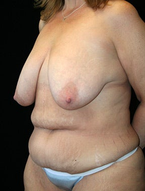Breast Lift and Lower Body Lift before 1076310