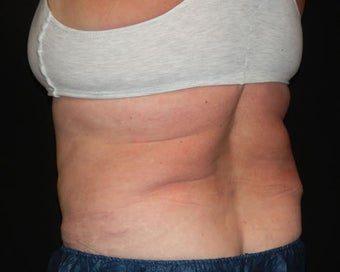 Coolsculpting 1148170