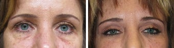 Juvederm/Fat Grafting before 718218