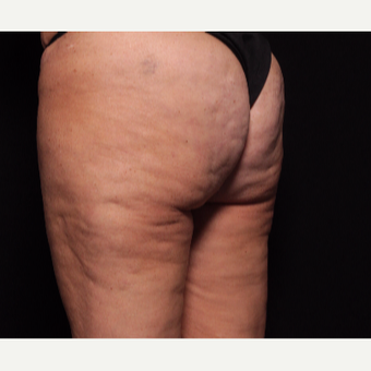 45-54 year old woman treated with Cellfina after 3104548