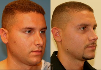 Revision Rhinoplasty after 251839