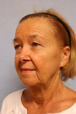 65-74 year old woman treated with Facelift before 3476168