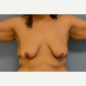 33- year old woman treated with Breast Lift with Implants before 3095439