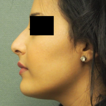 18-24 year old woman treated with Rhinoplasty before 3743270