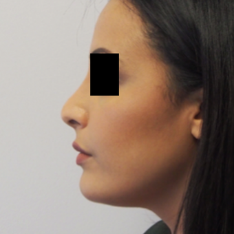 18-24 year old woman treated with Rhinoplasty after 3743270