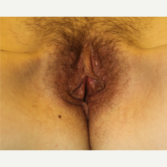 Labiaplasty before 3497124