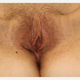 Labiaplasty after 3497124