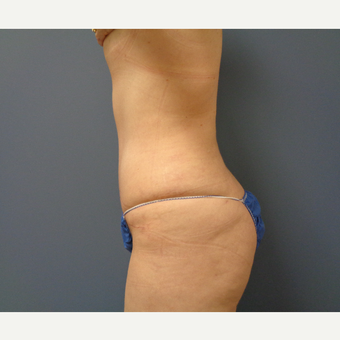 45-54 year old woman treated with Tummy Tuck after 3747224