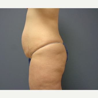 45-54 year old woman treated with Tummy Tuck before 3747224