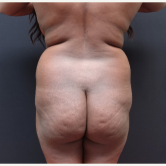 25-34 year old woman treated with Butt Augmentation before 3363826