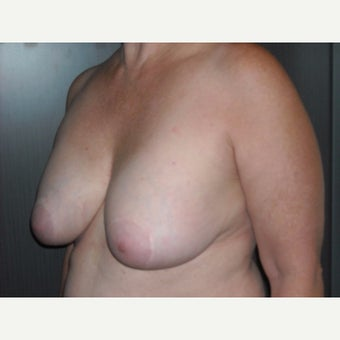 60 year old lady who wanted removal of her old breast implants followed by a breast lift. 1737068