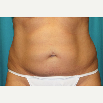 35-44 year old woman treated with CoolSculpting after 3398899