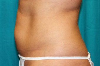 35-44 year old woman treated with CoolSculpting 3398899