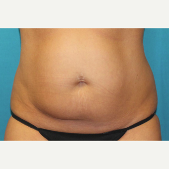 35-44 year old woman treated with CoolSculpting before 3398899