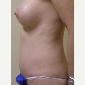 35-44 year old woman treated with Mommy Makeover after 3434726