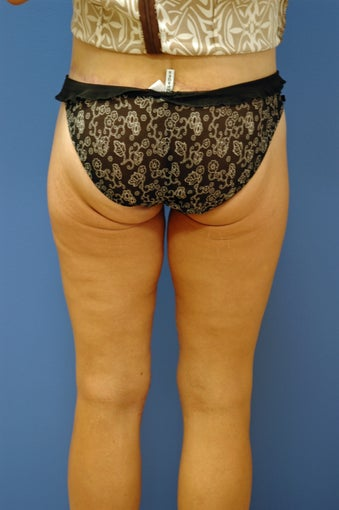medial thigh lift in bariatric patient 1048138