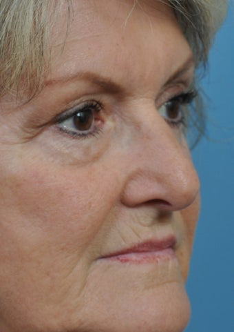 62 year old woman treated with Rhinoplasty before 2106955