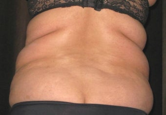 Liposuction of the Back and Flanks before 1508108