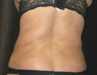 Liposuction of the Back and Flanks after 1508108