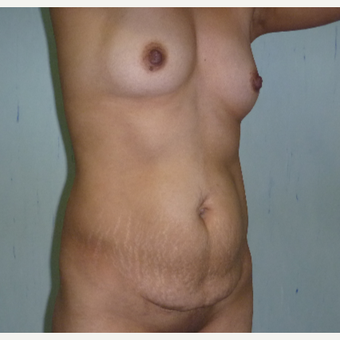 35-44 year old woman treated with Mommy Makeover before 3288342
