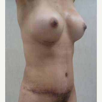 35-44 year old woman treated with Mommy Makeover after 3288342