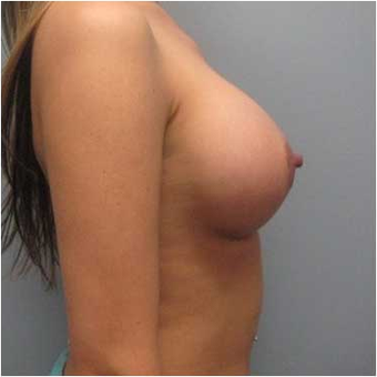 38 year old woman treated with Breast Augmentation after 3468276