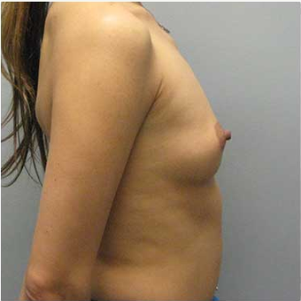 38 year old woman treated with Breast Augmentation before 3468276