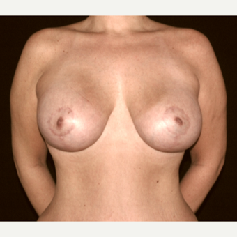 38 year old woman treated with Breast Lift after 3057664
