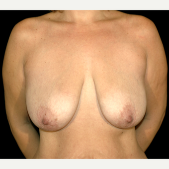 38 year old woman treated with Breast Lift before 3057664