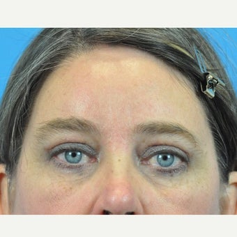 45-54 year old woman treated with Forehead Lift and Upper Blepharoplasty 1753898