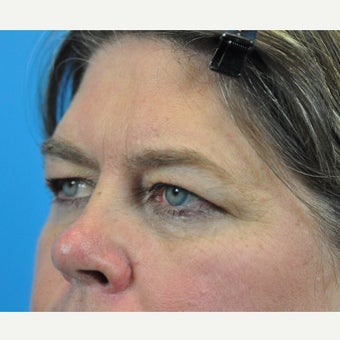 45-54 year old woman treated with Forehead Lift and Upper Blepharoplasty before 1753898