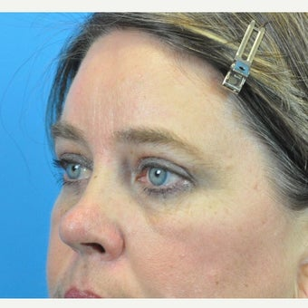 45-54 year old woman treated with Forehead Lift and Upper Blepharoplasty after 1753898