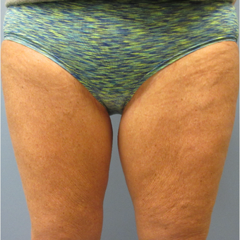 55-65 year old woman treated with CoolSculpting before 3764001