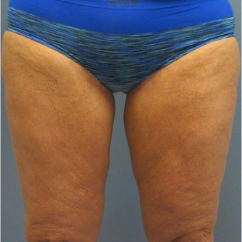 55-65 year old woman treated with CoolSculpting after 3764001
