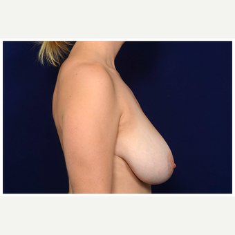 35-44 year old woman treated with Breast Reduction before 3075414
