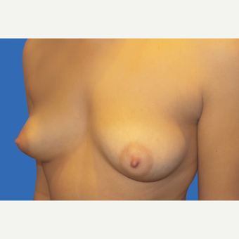 18-24 year old woman treated with Breast Augmentation before 3495200