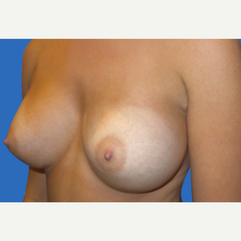 18-24 year old woman treated with Breast Augmentation after 3495200