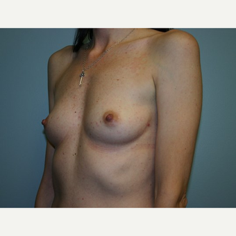 Breast Augmentation before 3562020