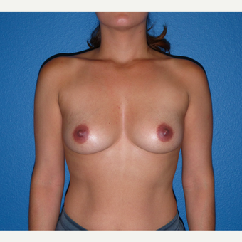 Breast Augmentation before 3807137