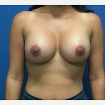 Breast Augmentation after 3807137