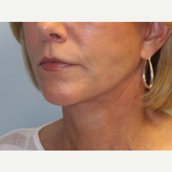 55-64 year old woman treated with Facelift after 3570828