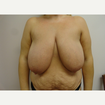 35-44 year old woman treated with Breast Lift and Tummy Tuck before 3205827