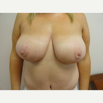 35-44 year old woman treated with Breast Lift and Tummy Tuck after 3205827