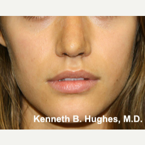 Rhinoplasty after 2990569