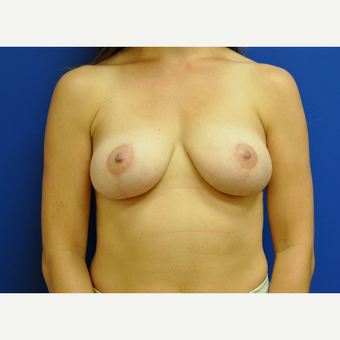 25-34 year old woman treated with Breast Lift after 3406640