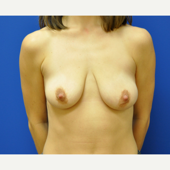 25-34 year old woman treated with Breast Lift before 3406640